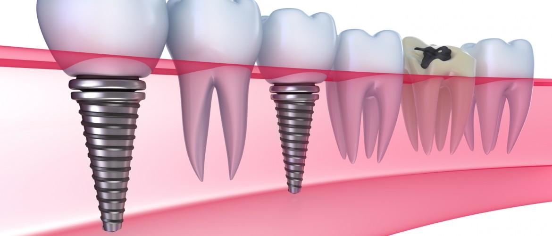 Cele mai bune implanturi dentare la preturi decente!