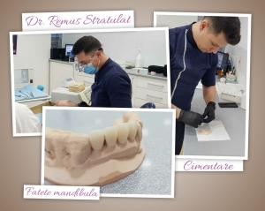 Dr. Remus Stratulat fatete mandibula