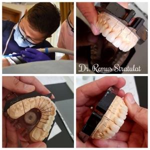 Dr. Remus Stratulat fatete dentare