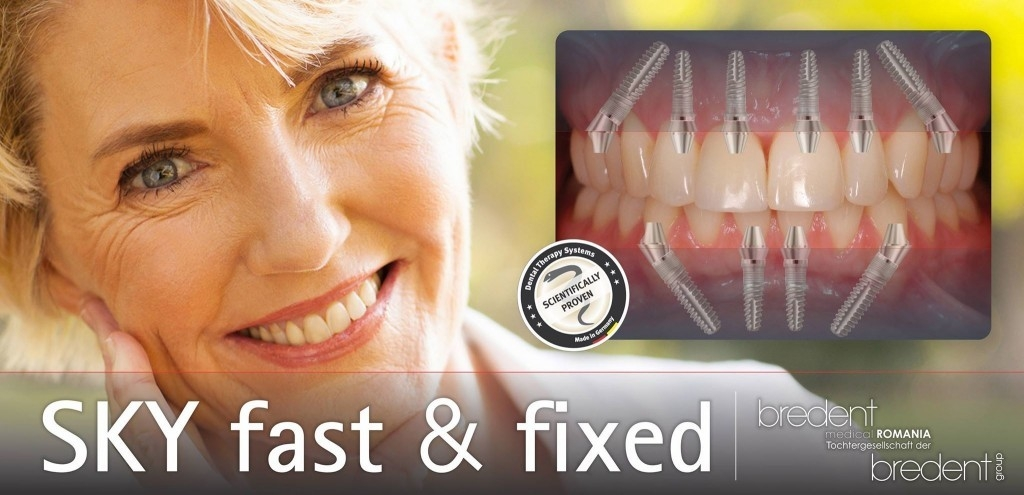 implant dentar bredent fast and fixed bucuresti