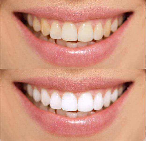 albire dinti cu laser bucuresti
