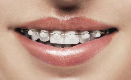 aparat dentar safir copii