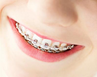 Aparatul dentar la copii
