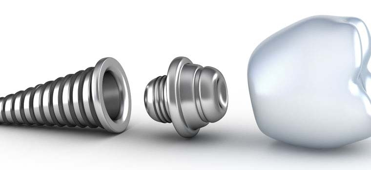 Calitatea materialelor implantului dentar face diferenta de pret