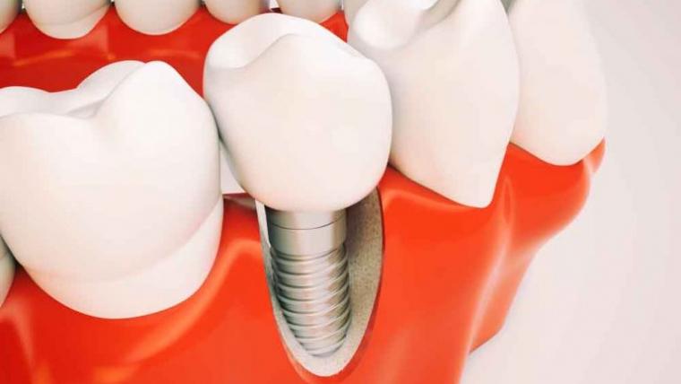 Durata de viata a unui implant dentar