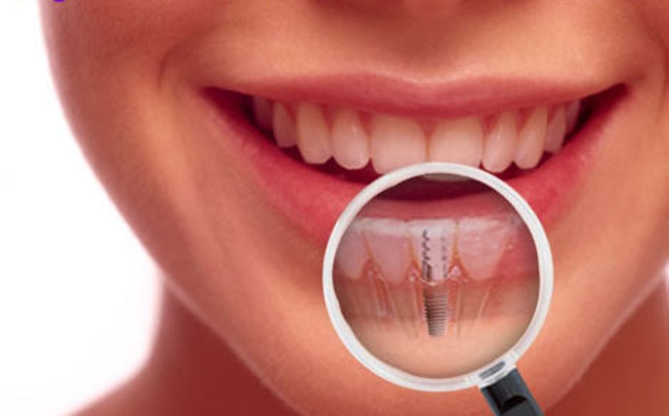 igiena-implant-dentar