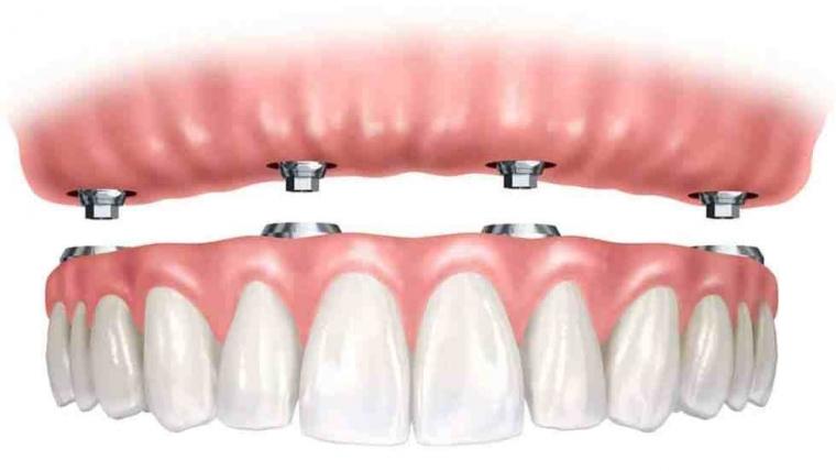 Diferenta dintre o lucrare fixa si una mobilizabila pe implant