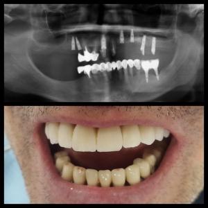 Punti totale zirconiu-ceramica pe implanturi - Dr. Andreea Lungu