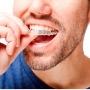 Aparatul dentar invizibil Invisalign