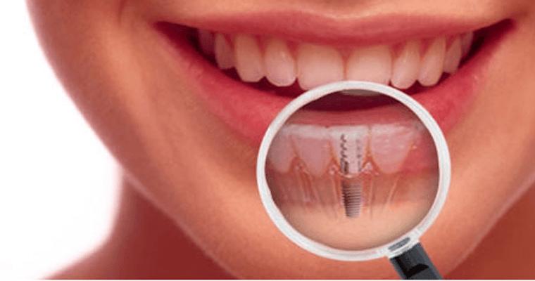 Ce indica pretul unui implant dentar?