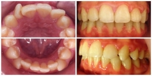 aparat dentar tratament ortodontic