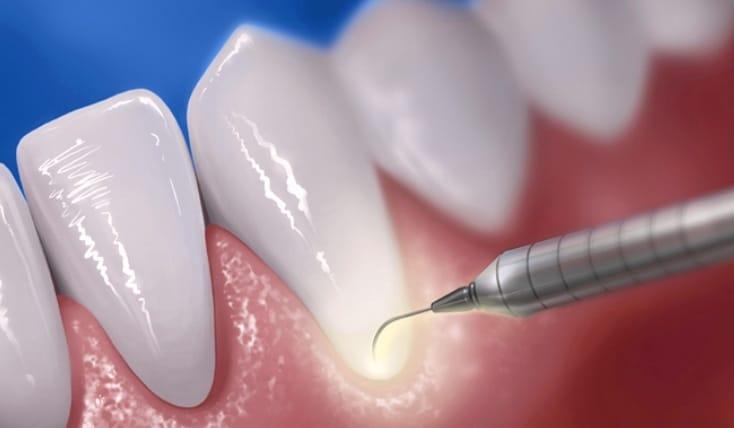 Laserul in parodontologie – tratamentul parodontozei