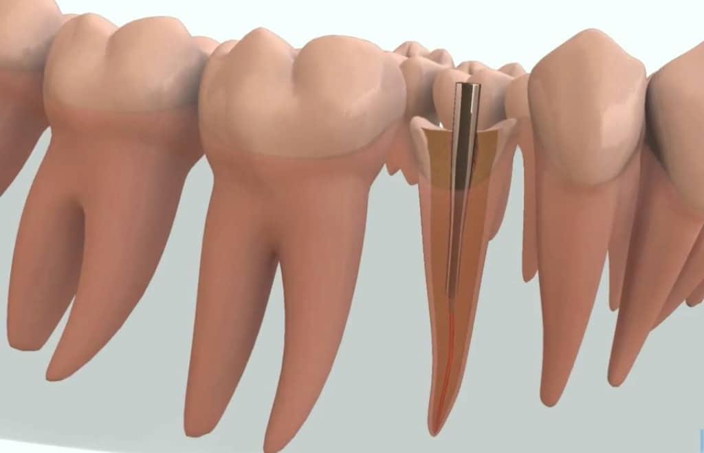 Pivotul dentar: rol, tipuri, caracteristici