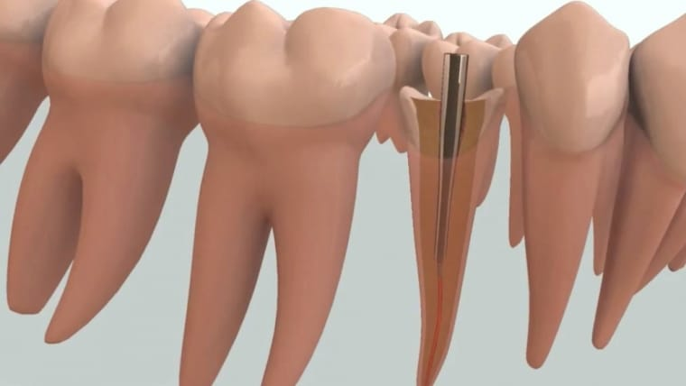 Pivot dentar versus implant dentar