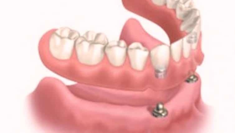 Proteza dentara cu capse