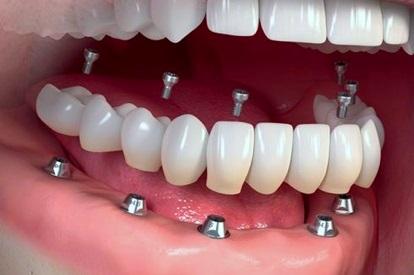 Proteza dentara fixa pe implanturi