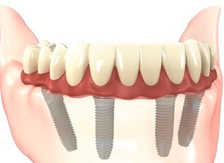 Proteza dentara pe implanturi: tipuri, caracteristici