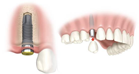 Tipuri si metode de inserare a implantului dentar
