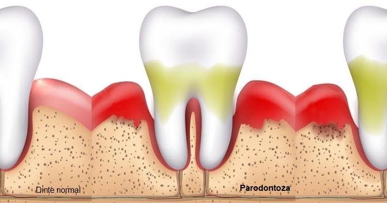 Ce este parodontoza, cum se manifesta si cum se trateaza
