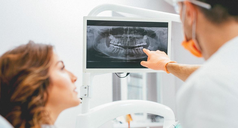 Evaluarea osului inainte de implantul dentar