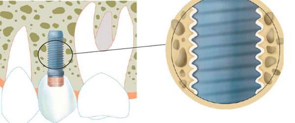 Ce este osteointegrarea implanturilor dentare?