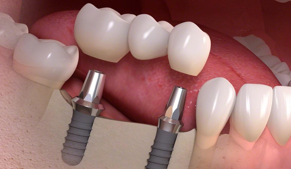 Solutii pentru inlocuirea dintilor lipsa