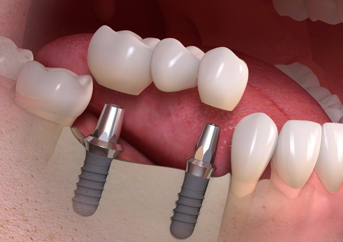 Extracția dentară - Dental extraction - alegopen.ro