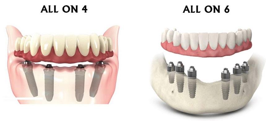 Restaurarea totala a danturii cu implanturi dentare