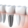 Etapele interventiei de implant dentar