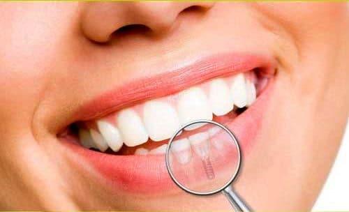Beneficiile implantului dentar pentru sanatatea orala