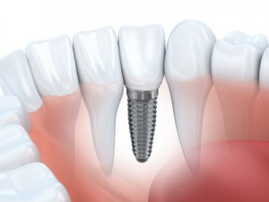 Recuperarea dupa operatia de implant dentar