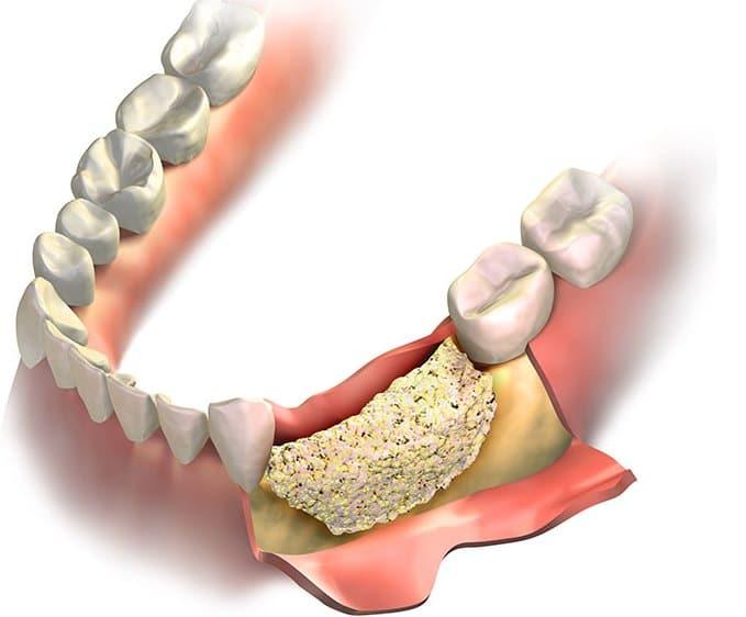Aditia osoasa in cazul implantului dentar