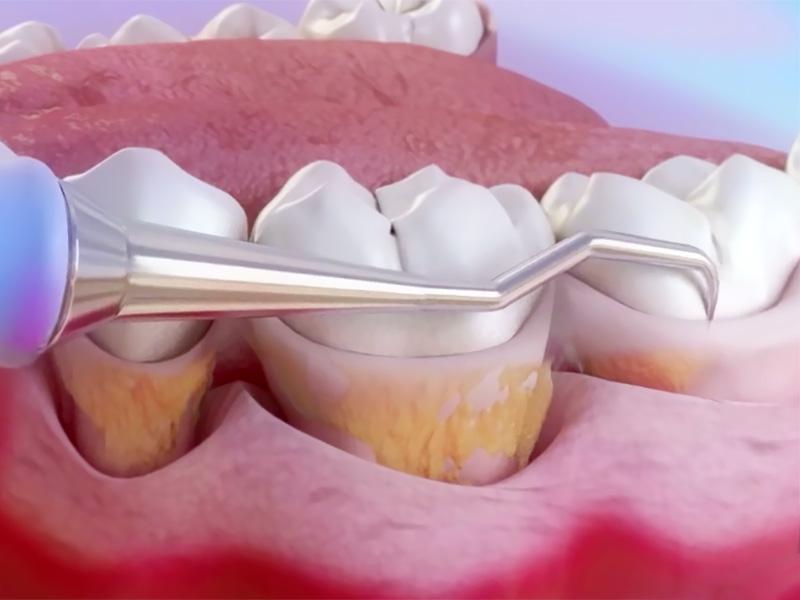 Chiuretajul gingival in tratamentul parodontozei