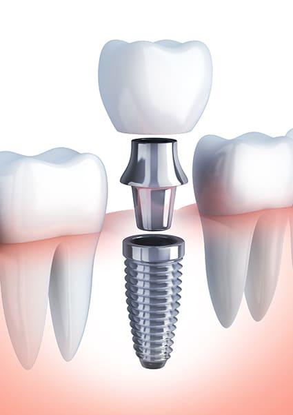 Implant dentar si proteza intr-o singura interventie