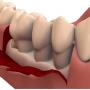 Operatia cu lambou in tratamentul parodontozei