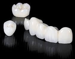 Zirconiul dentar si aplicatiile lui in implantologie