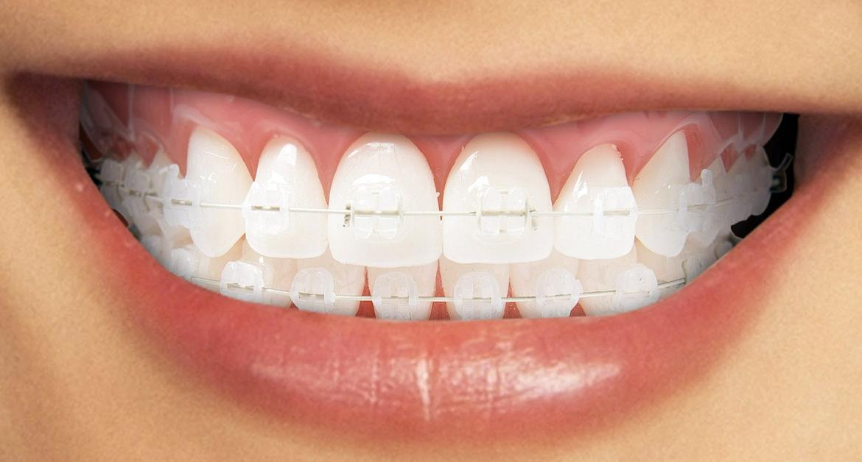 Aparatul dentar ceramic: caracteristici, avantaje, pret