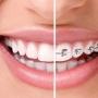 Aparat dentar safir: caracteristici, avantaje, pret