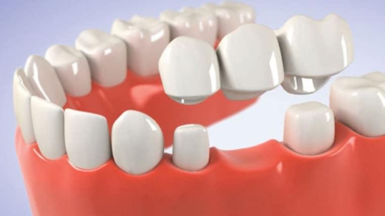 Tipuri de punti dentare: caracteristici, avantaje, preturi