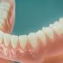 Proteze dentare mobile moderne: tipuri, caracteristici, preturi