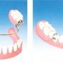 Proteza dentara scheletata: caracteristici si avantaje