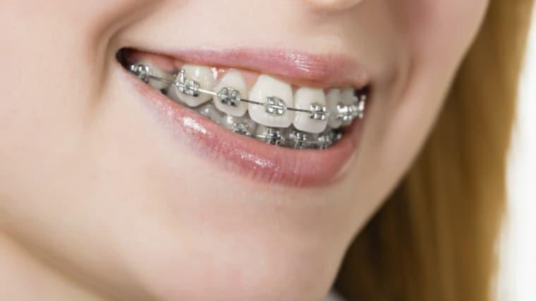 Aparatul dentar fix metalic: caracteristici, avantaje si pret