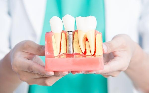 Implantul dentar si diabetul: ce trebuie sa stii
