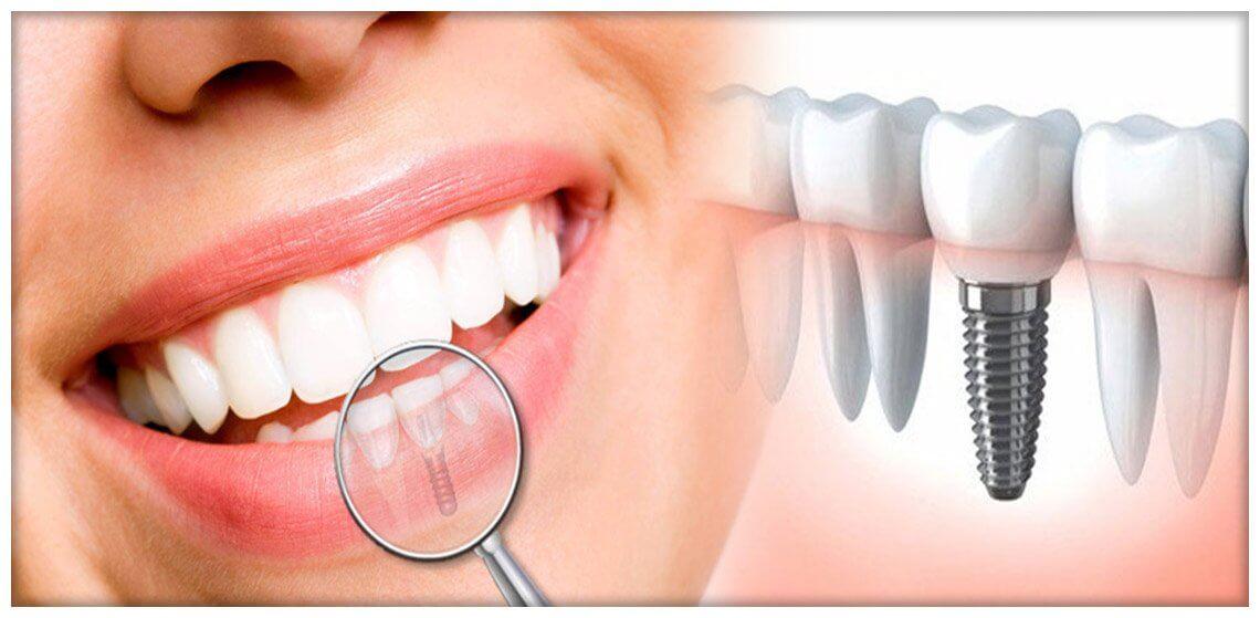 Implanturile dentare in cazul parodontozei