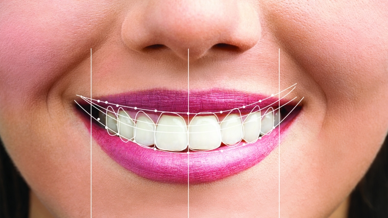 Totul despre Digital Smile Design