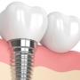 Materiale folosite la implantul dentar