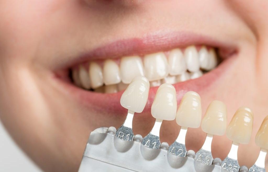Importanta alegerii culorii dintilor