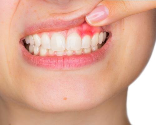Abcesul dentar: cauze, cum se recunoaste si tratament