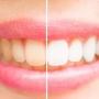Ce este albirea dintilor si cum se realizeaza?