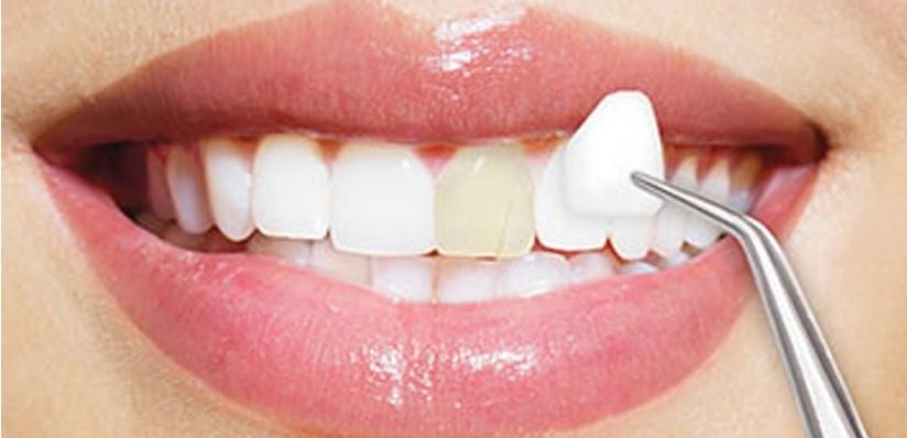Care este diferenta dintre coroane si fatete dentare?